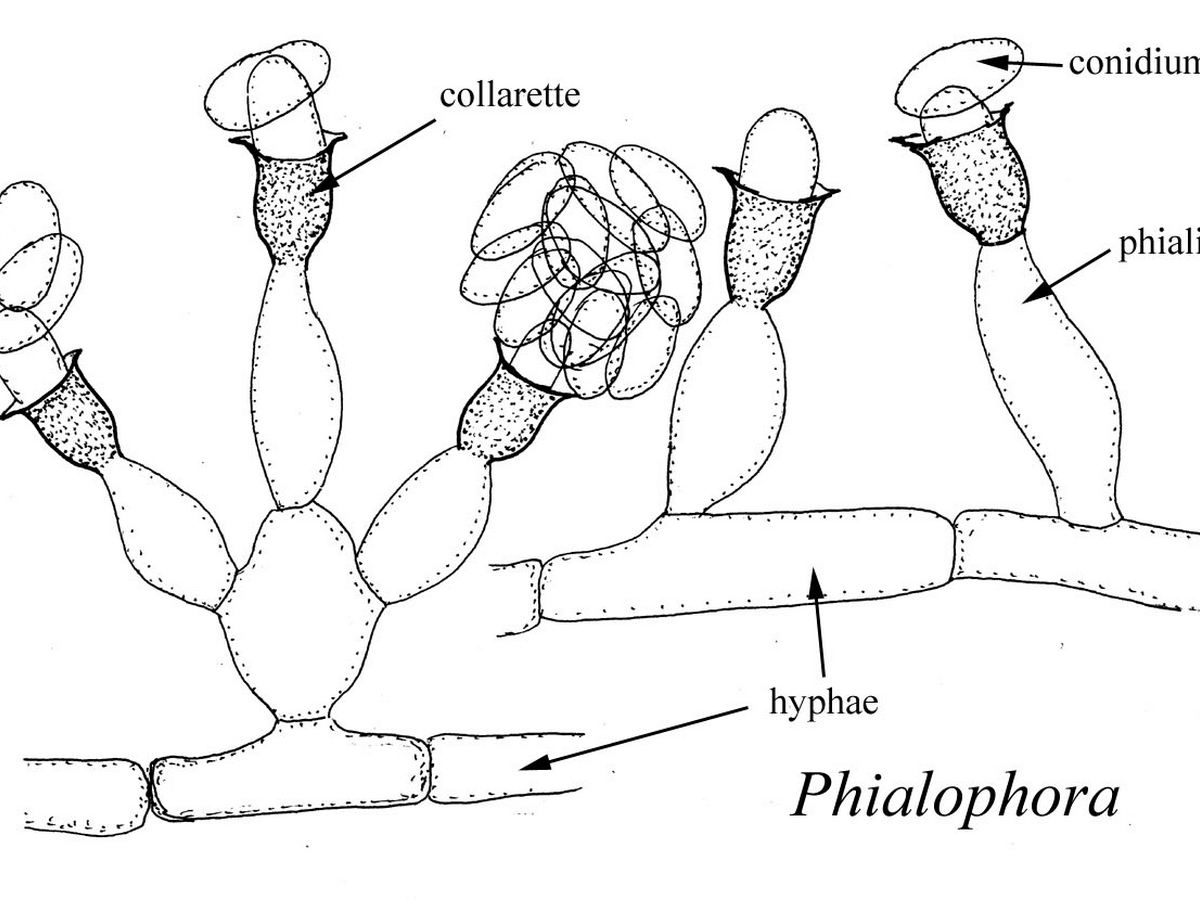 Phialophora_verrucosa_diagrams_phialides.jpg