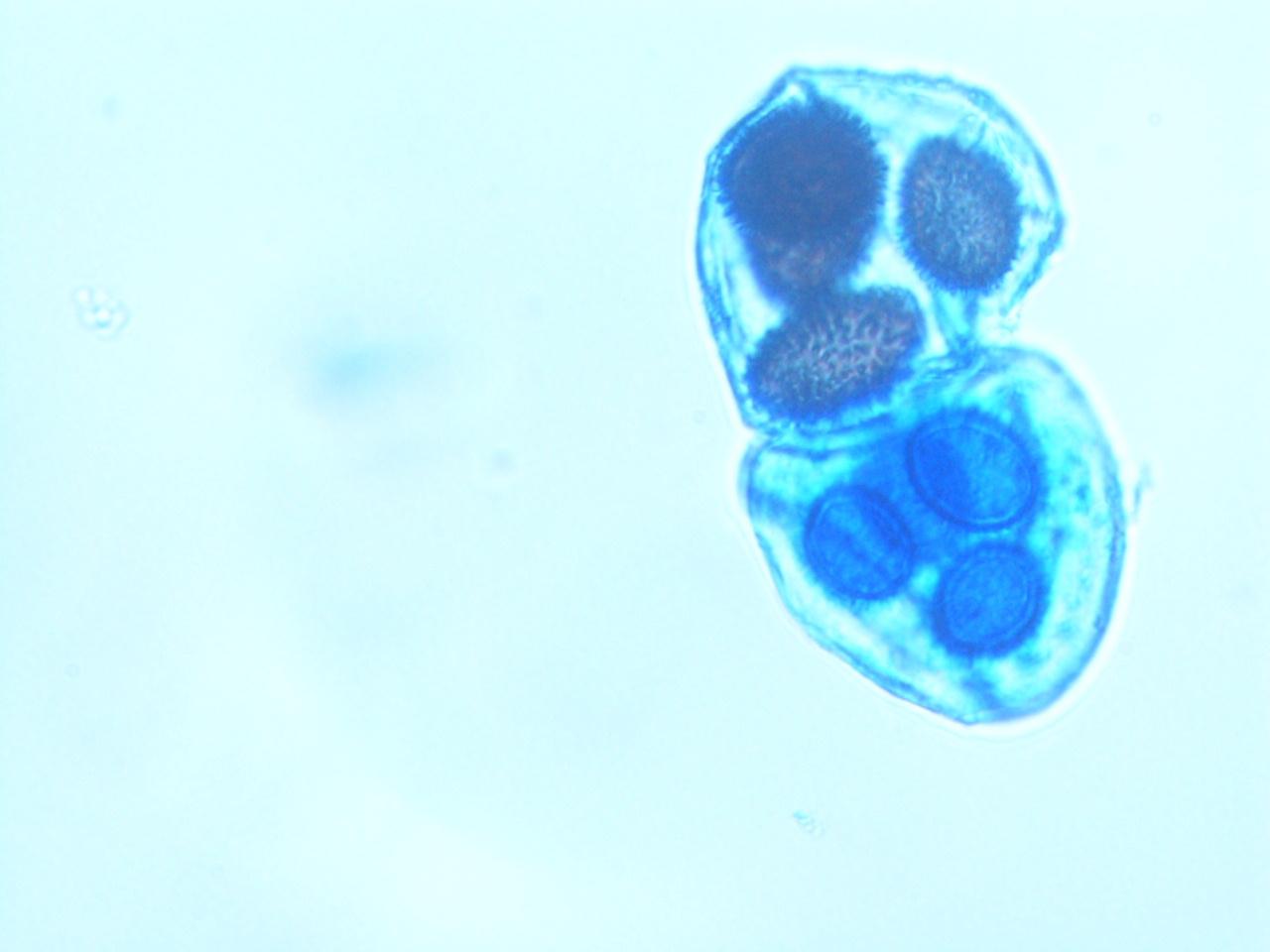 TuberMelanosporum134.jpg