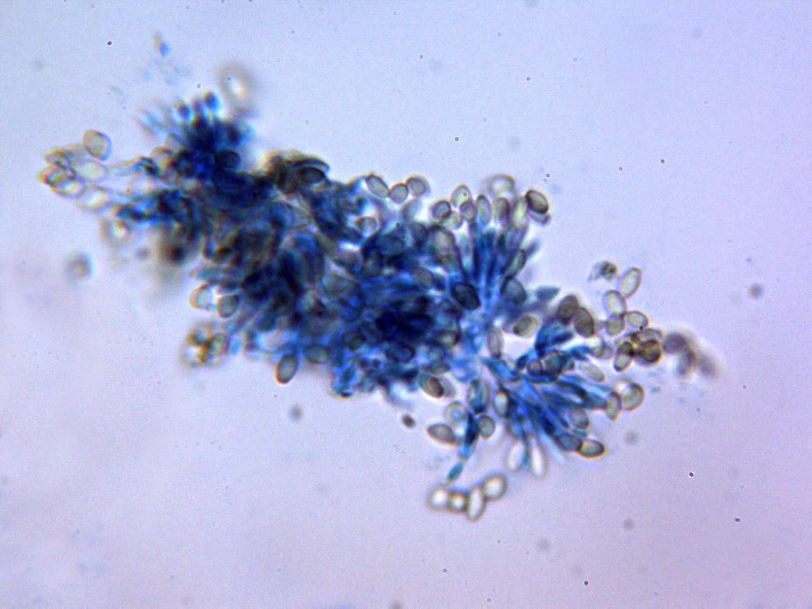 11-ConidiognesisazuldeLactofenol.jpg