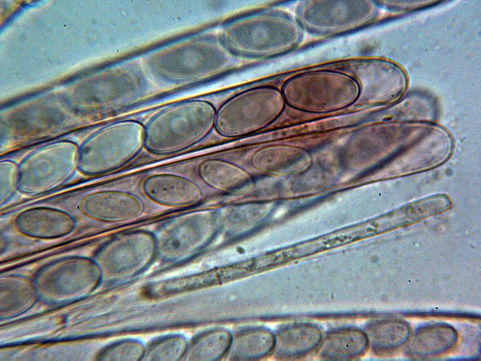 15-Ascosyparfisis2.jpg