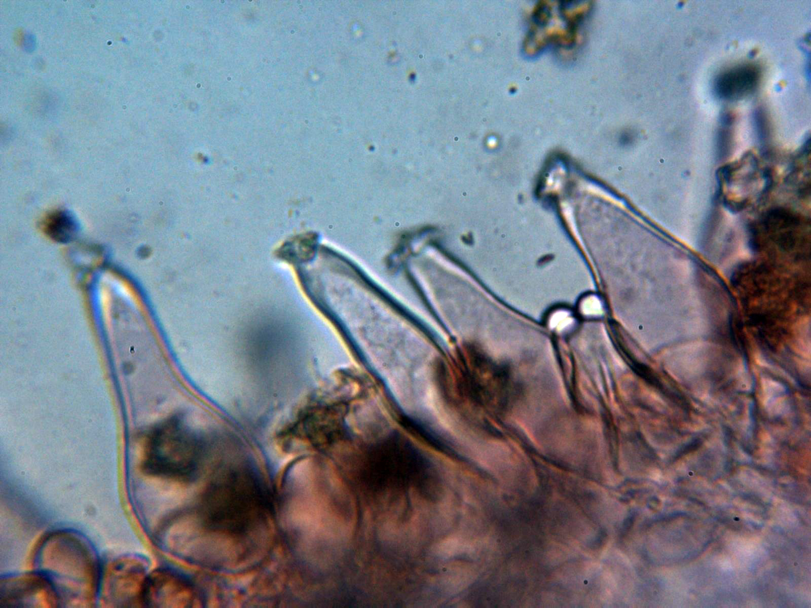 5-Queilocistidios1.jpg