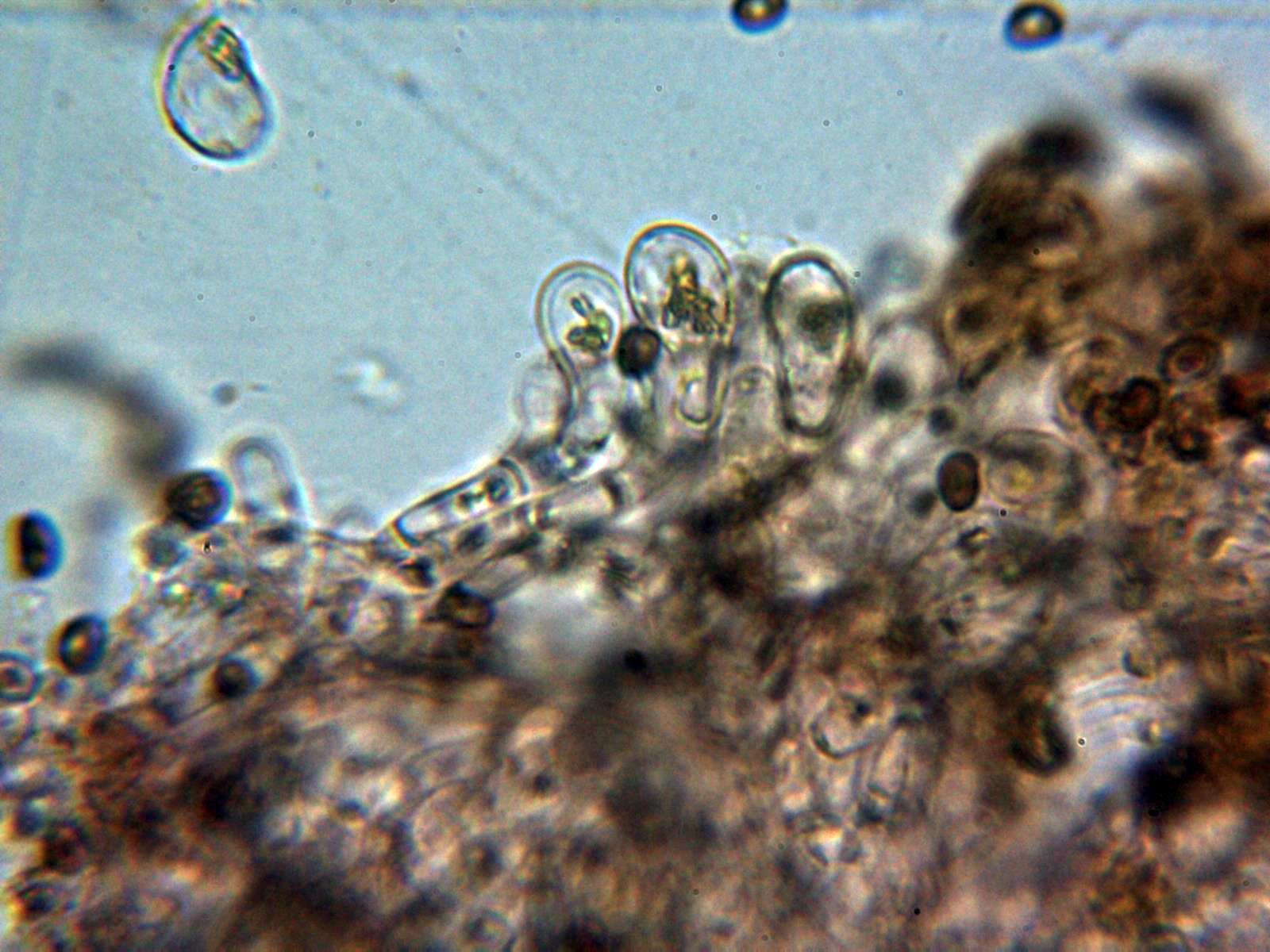 5-Queilocistidios2.jpg