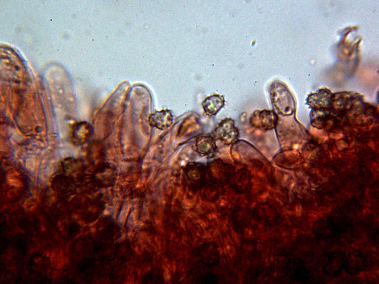 6-Himenioconesporas.jpg