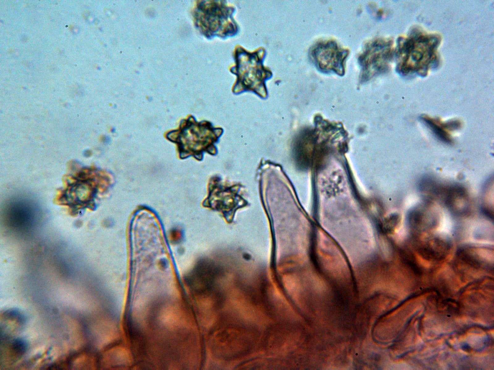 6-Queilocistidios2.jpg