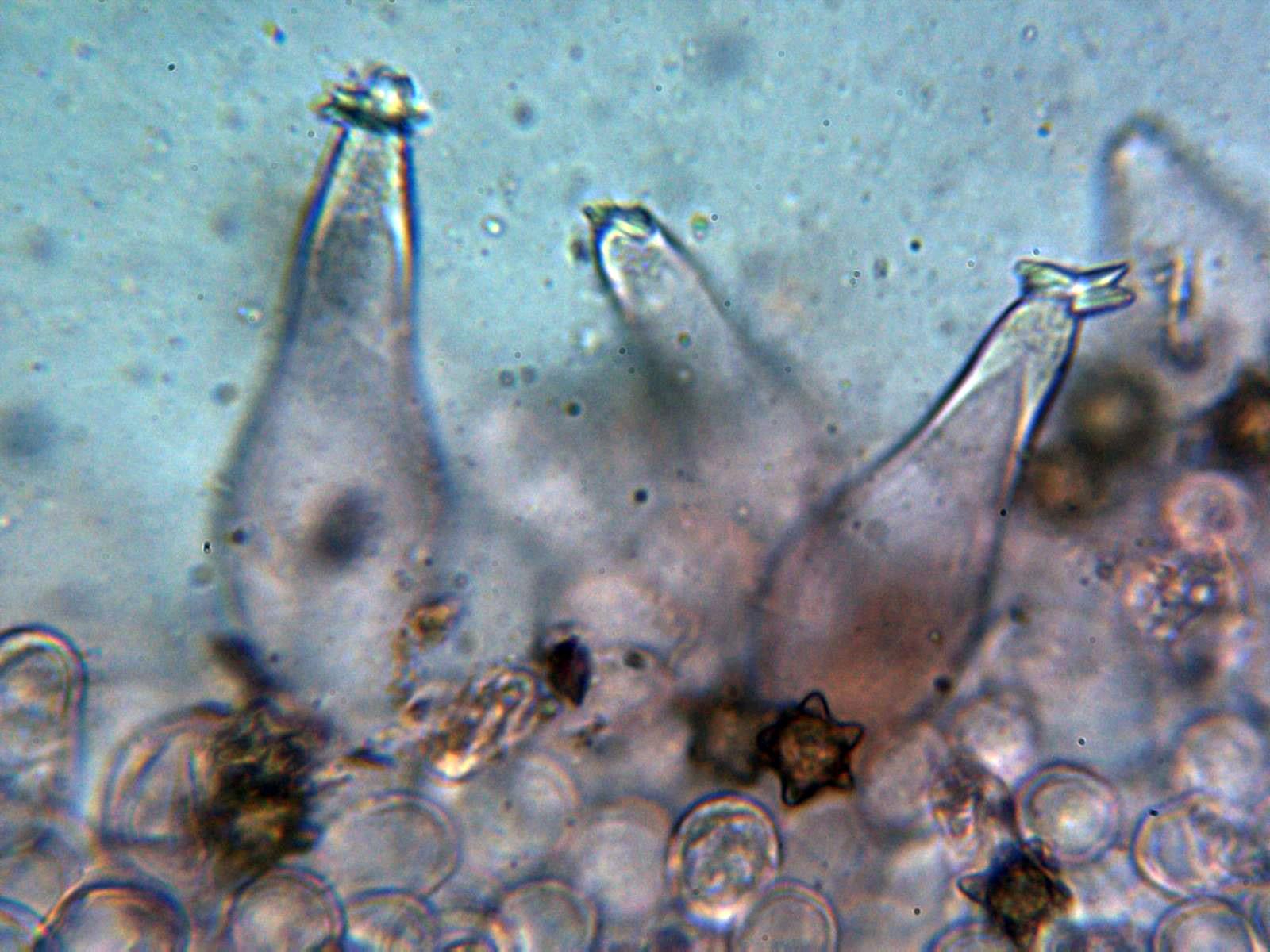 7-Queilocistidios4.jpg
