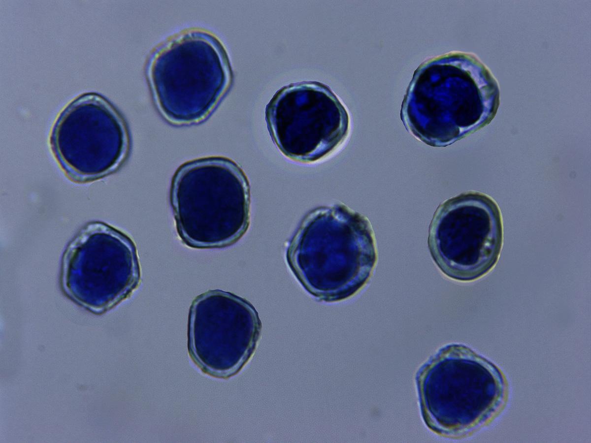 AeciosporasenazuldeLactofenol.jpg