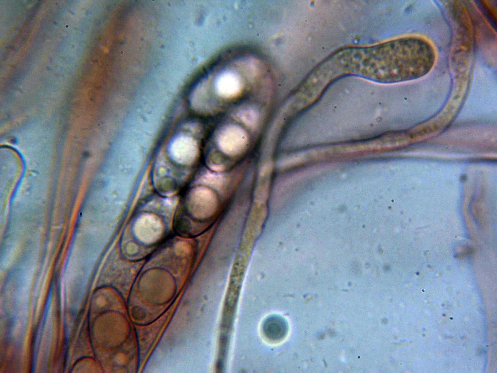 Ascayparfisis.jpg