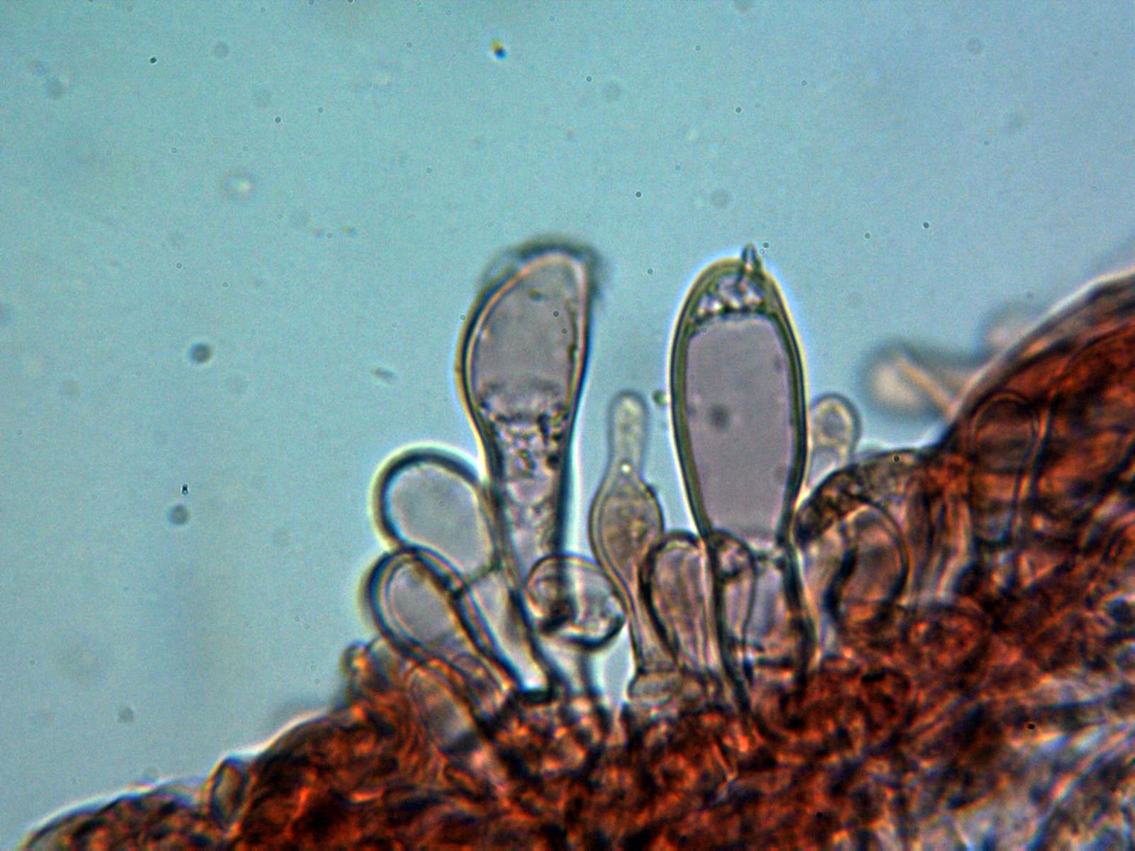 Caulocistidios3_2020-09-24-2.jpg