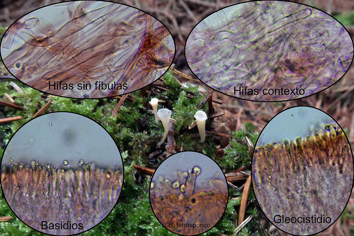 Clavicoronataxophilamicro.jpg