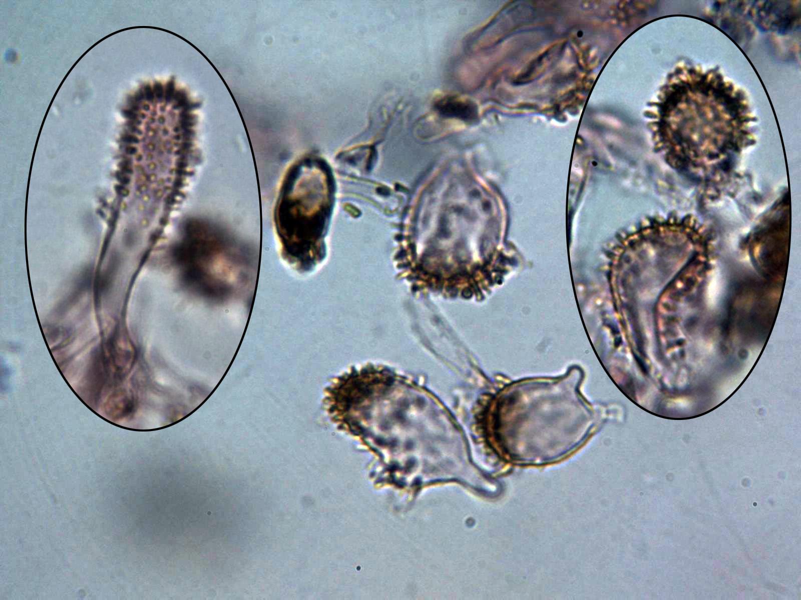 Clulasepitelialesycistidio.jpg