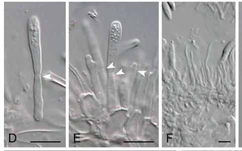 Conidiforosyparfisis.JPG
