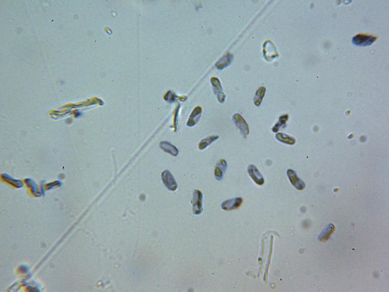 EsporasMelzeramiloides.jpg