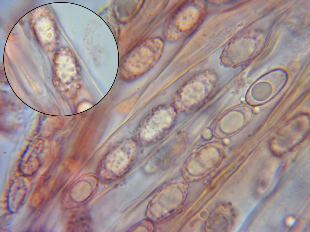 Esporasverrucosas.jpg