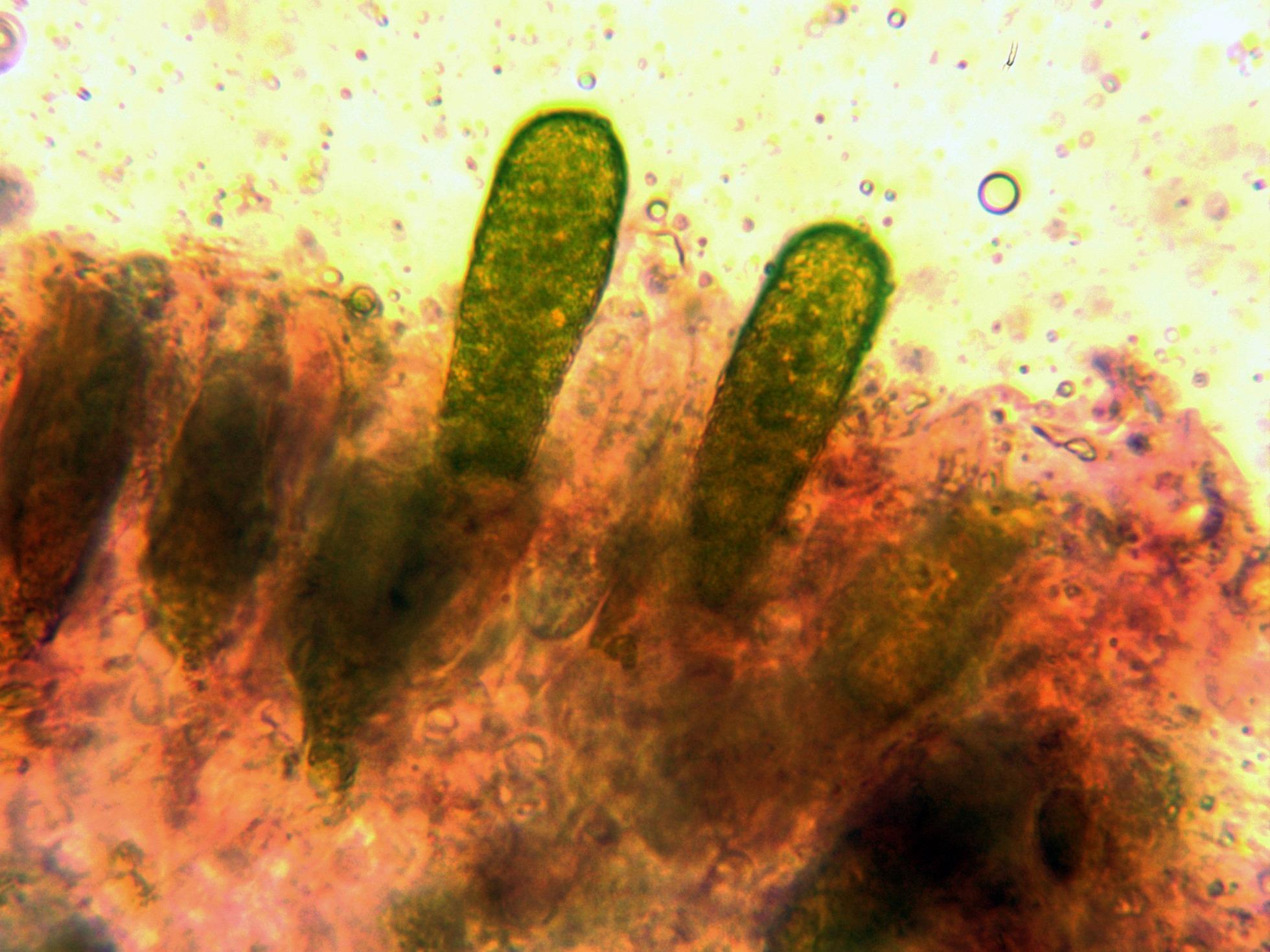 Gloeocistidios.jpg