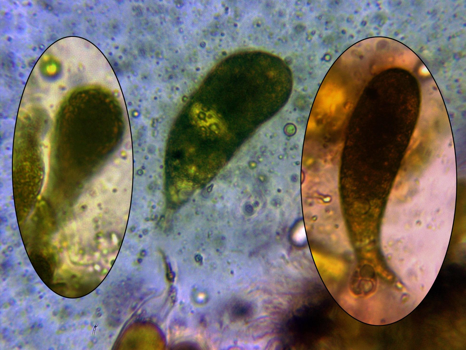 Gloeocistidiosp.jpg