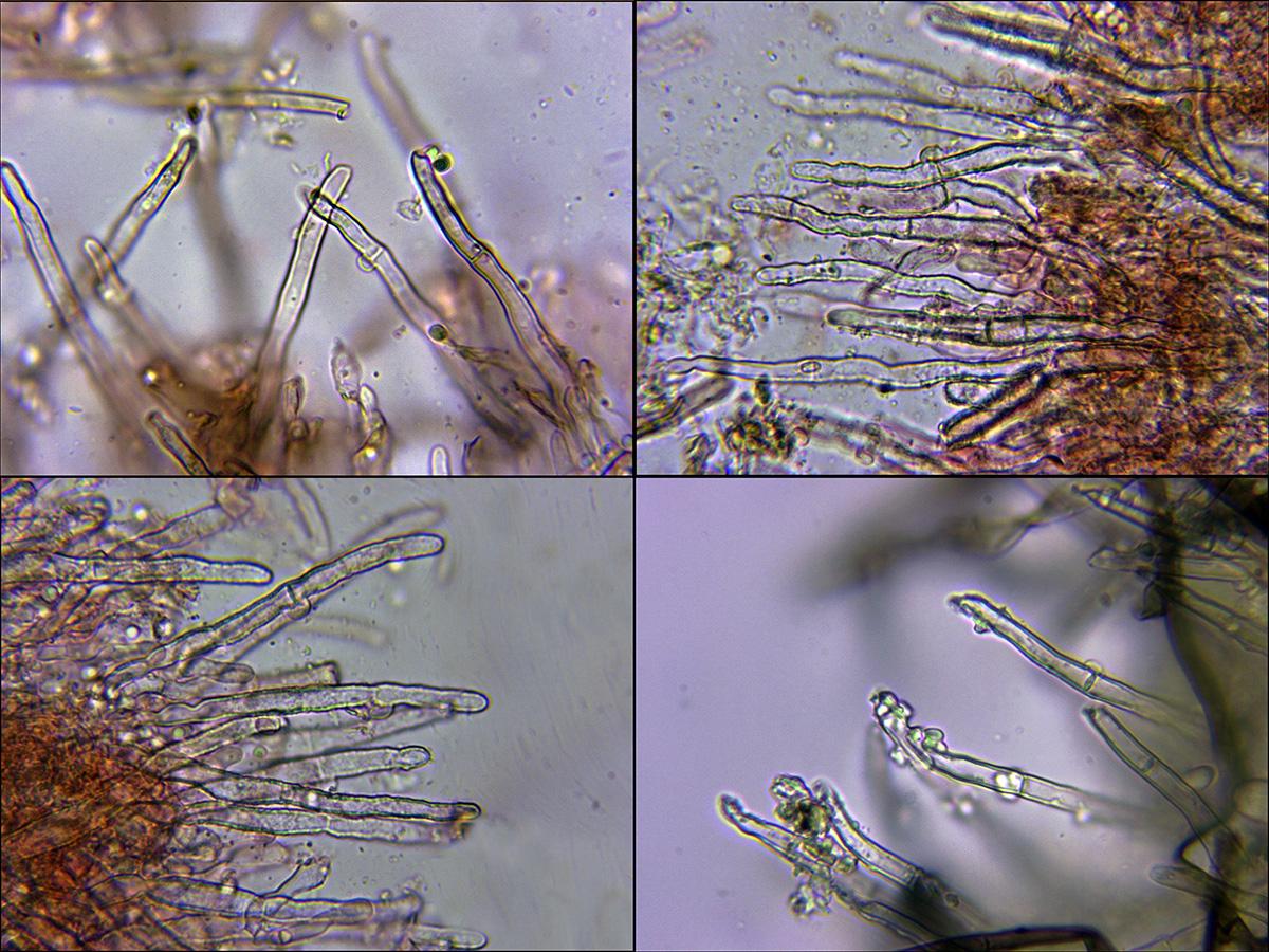 Hyphodontiapallidulaseptocistidios.jpg