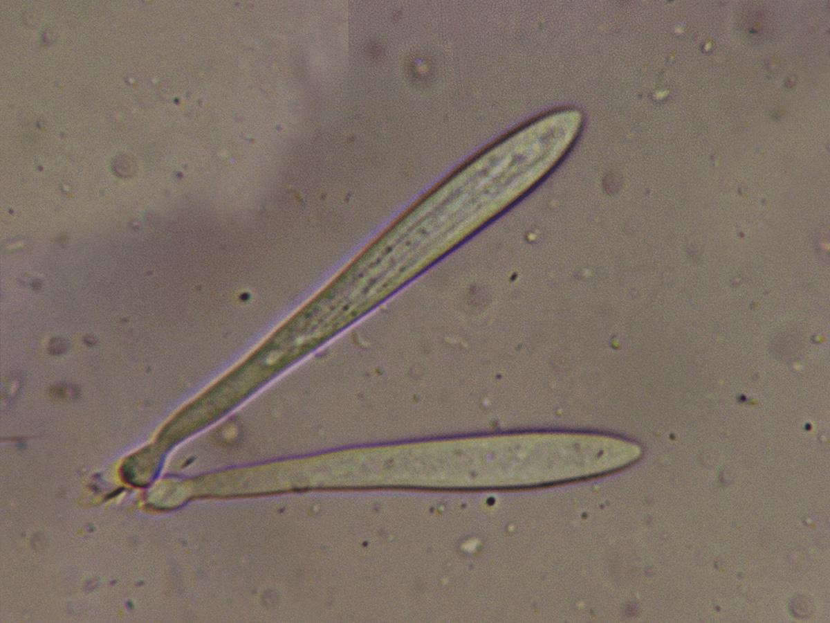 LophodermiumfoliicolaBaseascas.jpg
