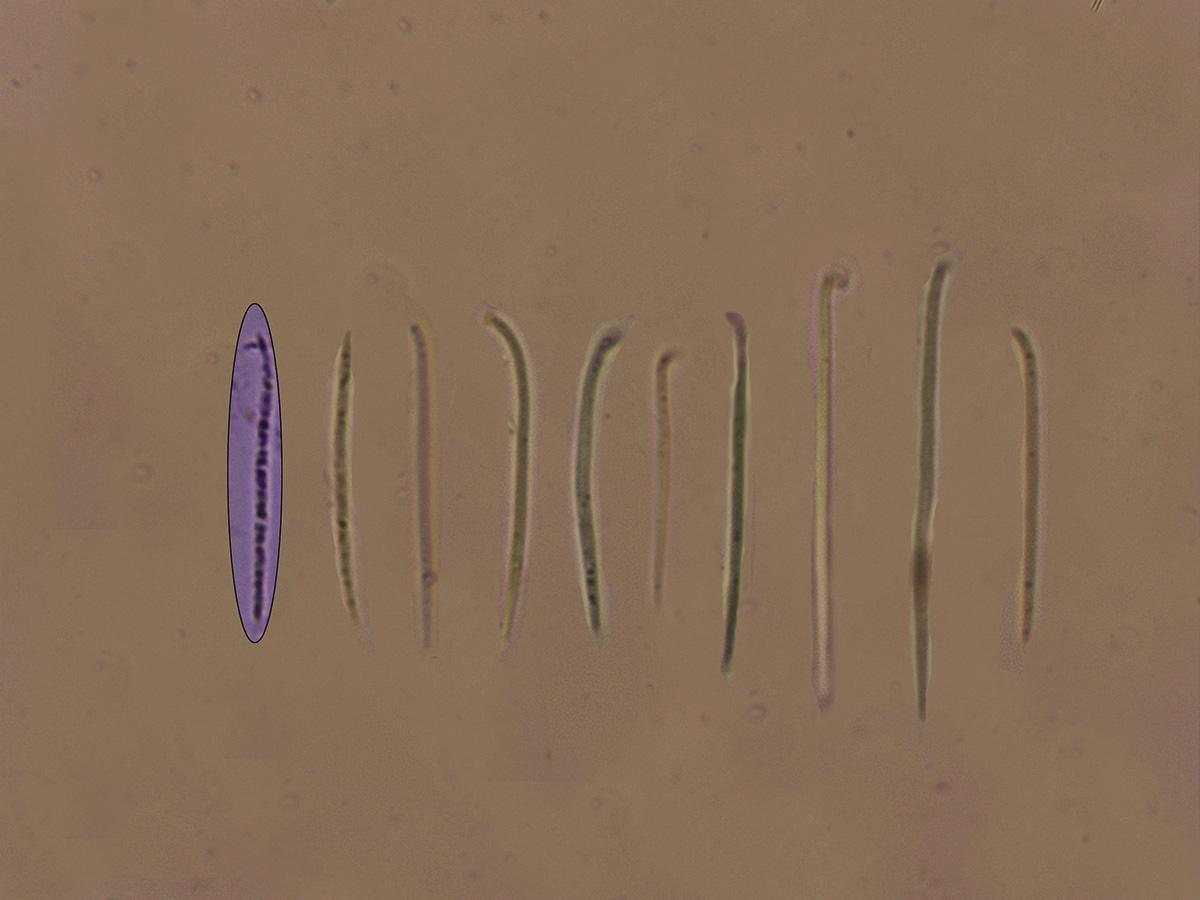 LophodermiumfoliicolaEsporas.jpg