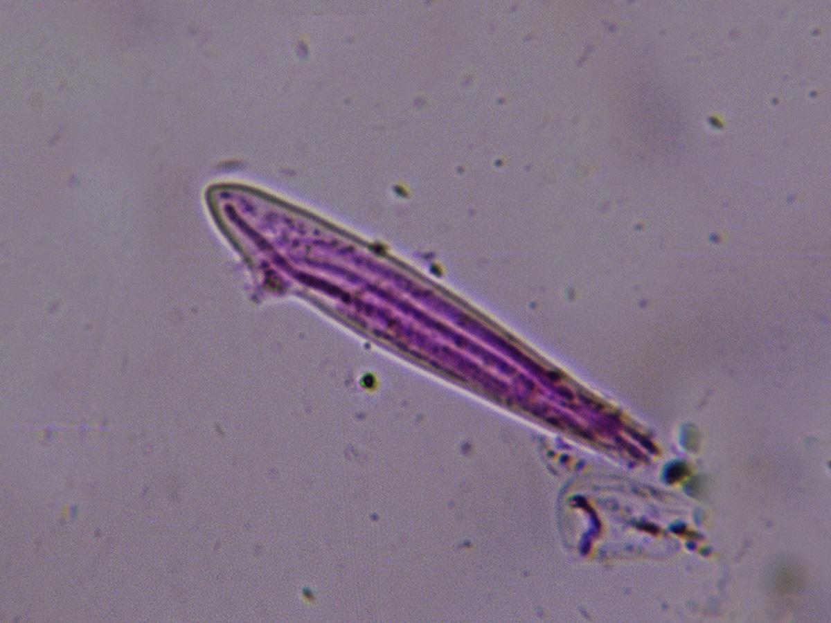 LophodermiumfoliicolaEsporasenasca.jpg