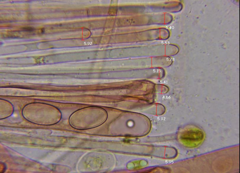 Medidasparfisis1.JPG