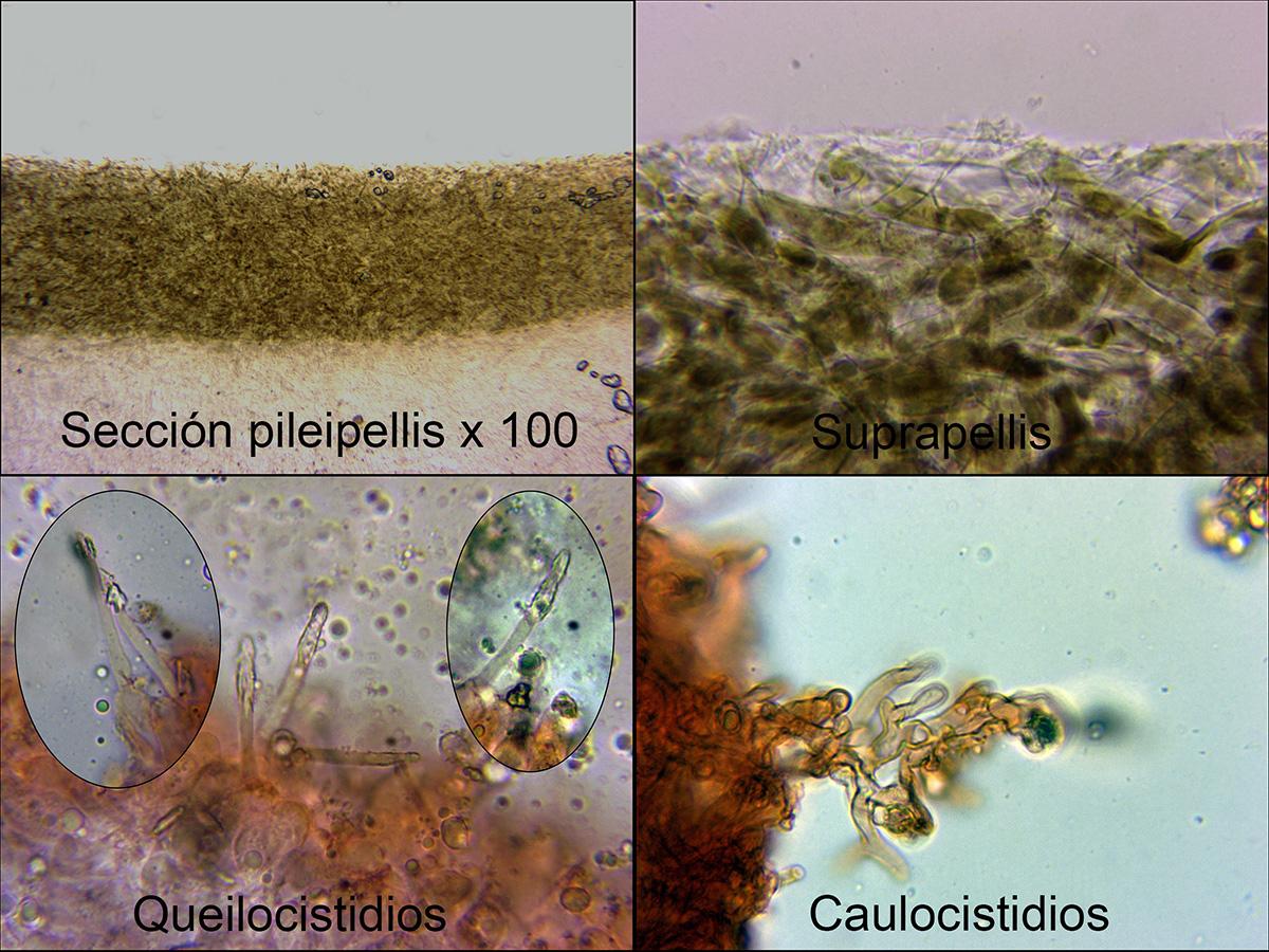 Melanoleucarasilismicro.jpg