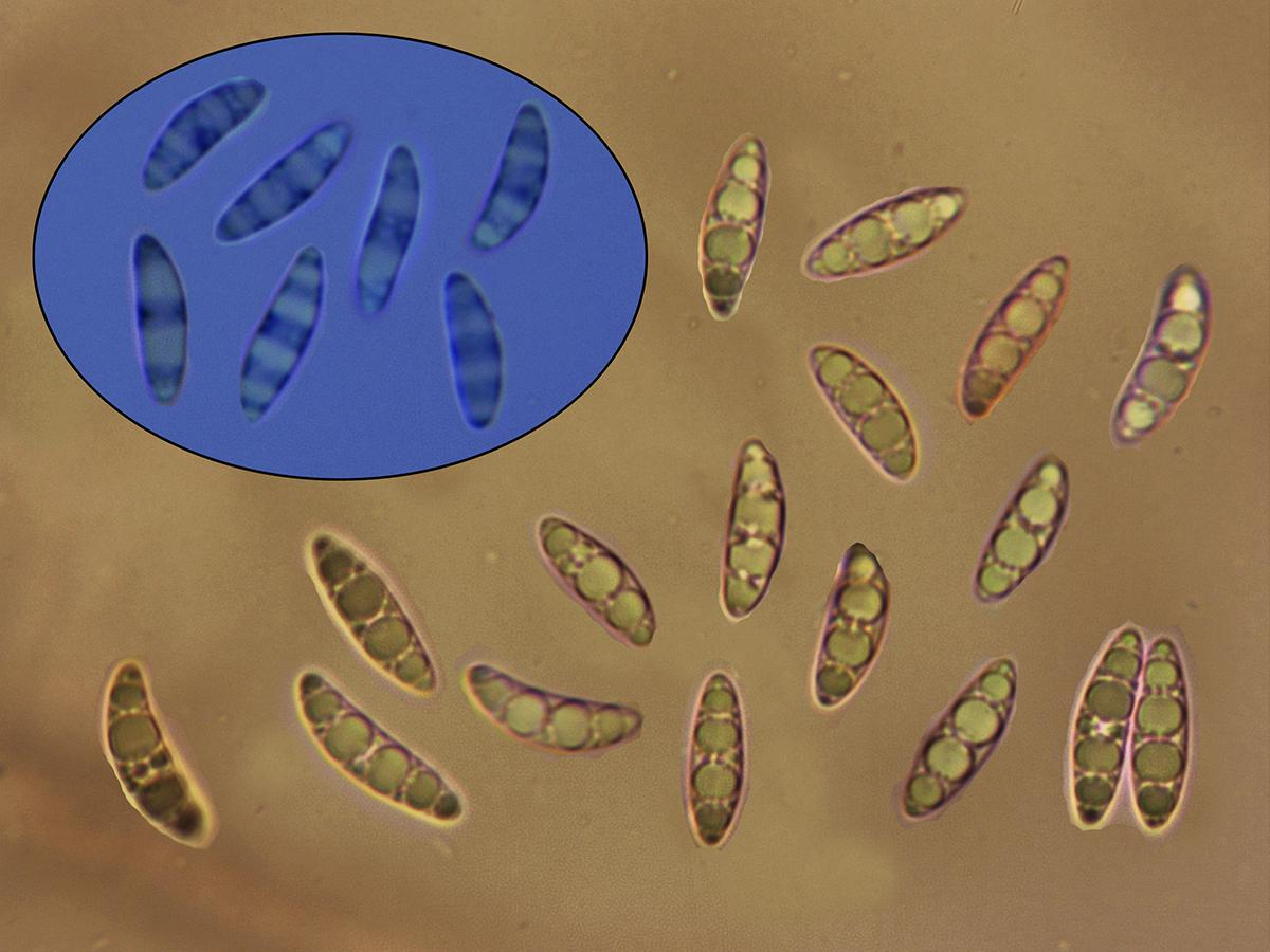 MicroglossumaffnudipesEsporasRojoCongoyAzuldeCresilo.jpg
