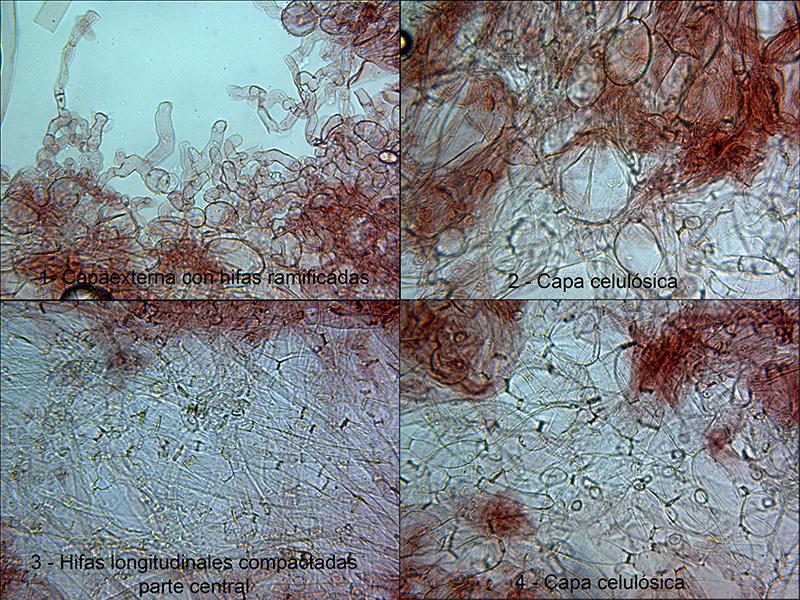 Pezizavariamicroseccin.jpg