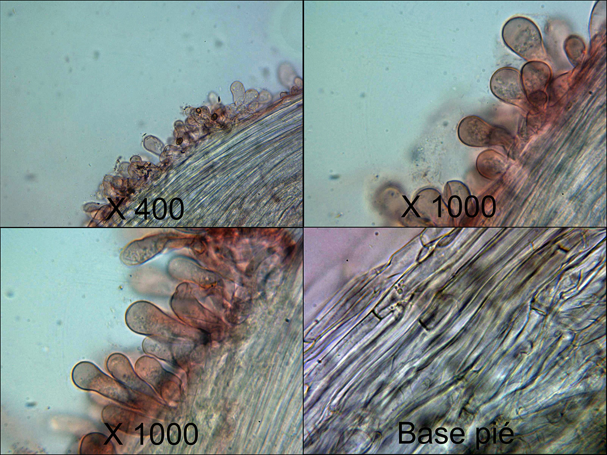 PholiotinadasypusCaulocistidios.jpg