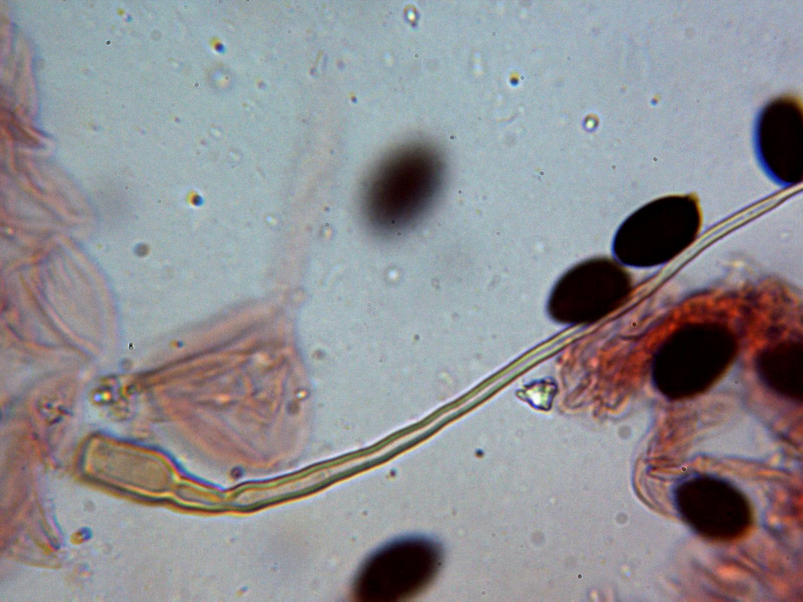 Pileocistidio1.jpg