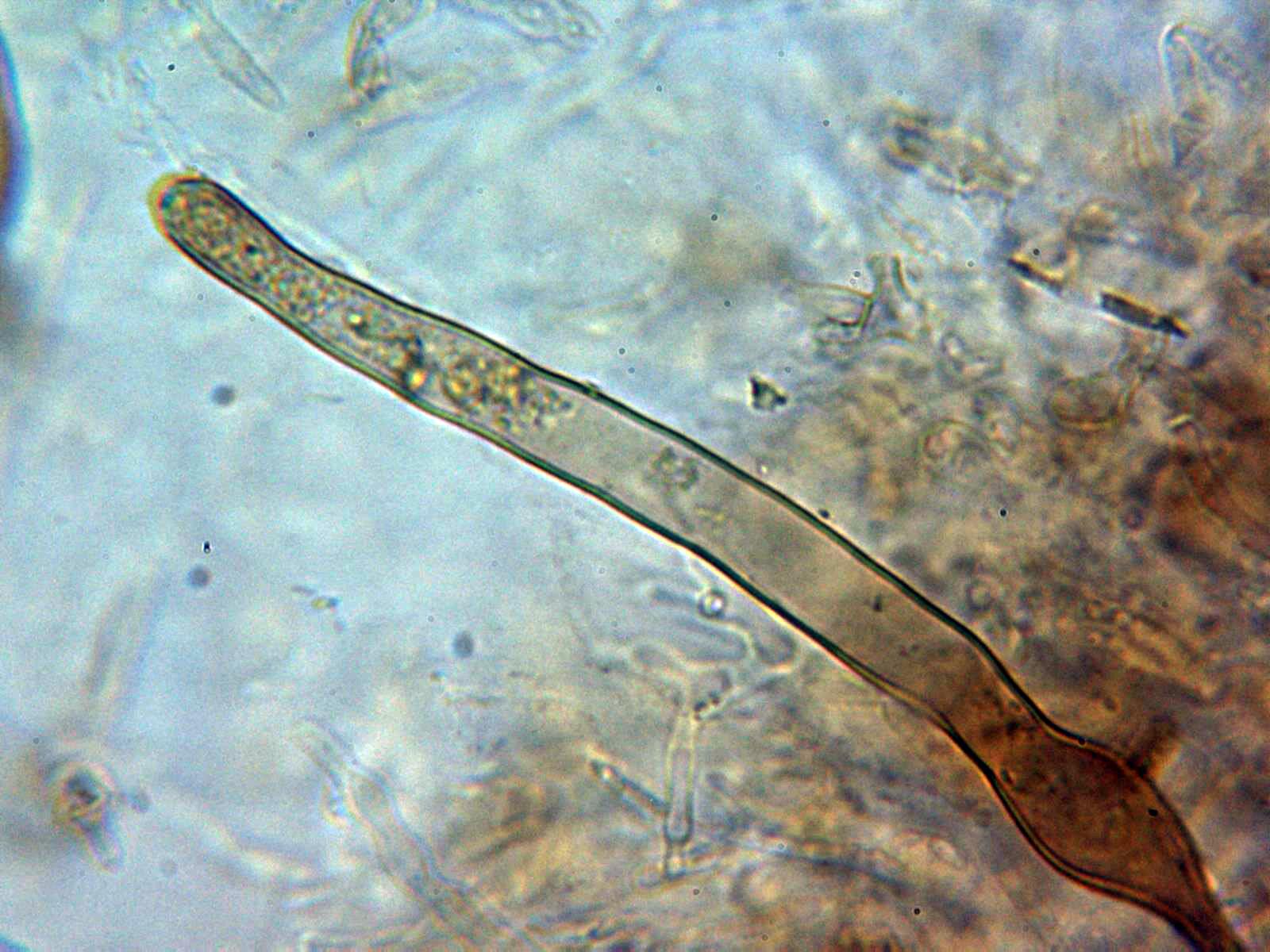 Pileocistidioagua2.jpg