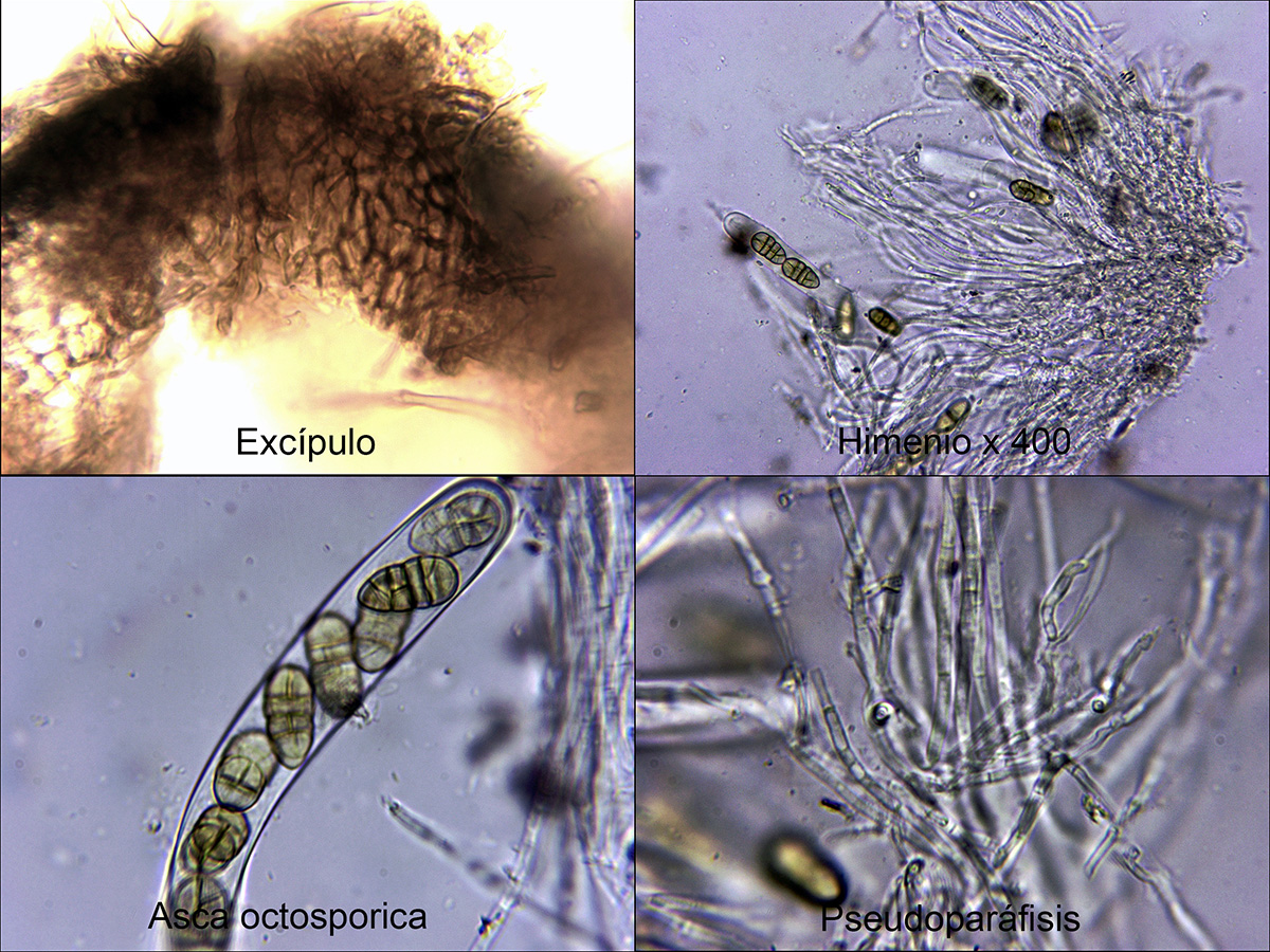 Pleosporaaffphaeocomoidesmicro.jpg