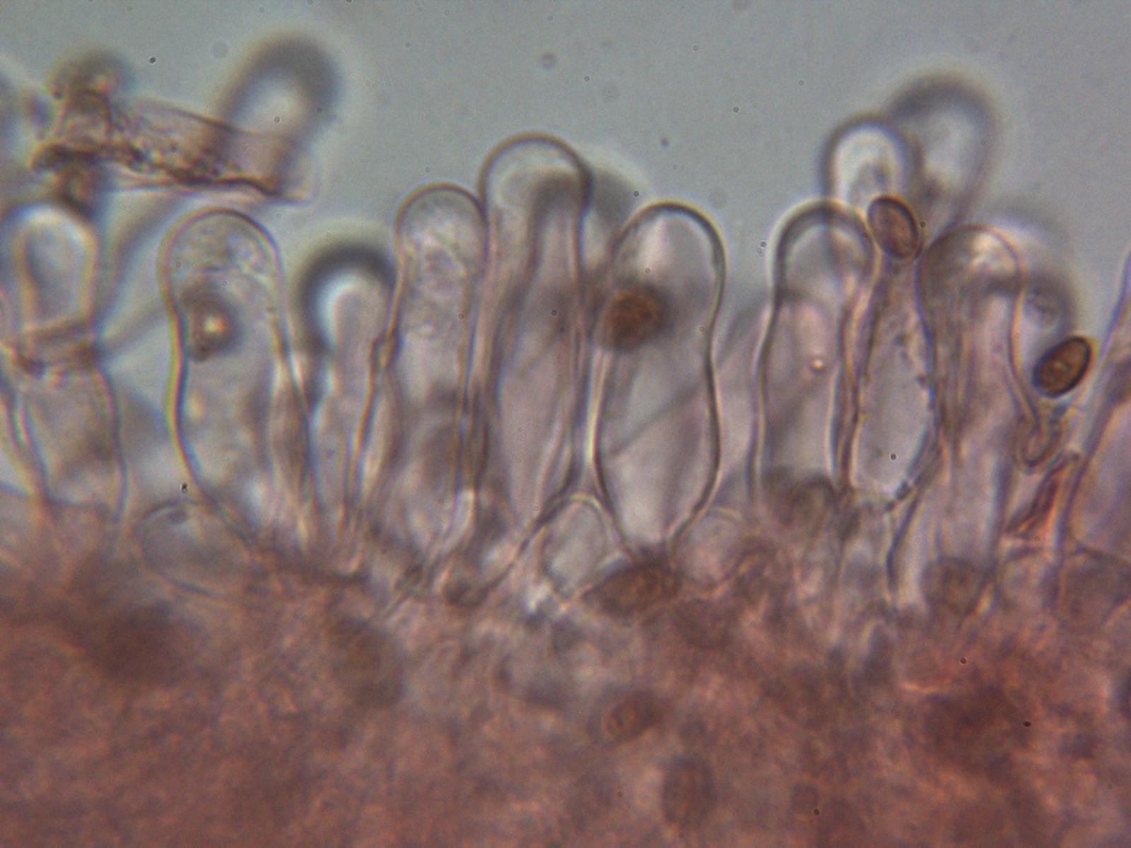 Queilocistidios2_2020-10-03.jpg