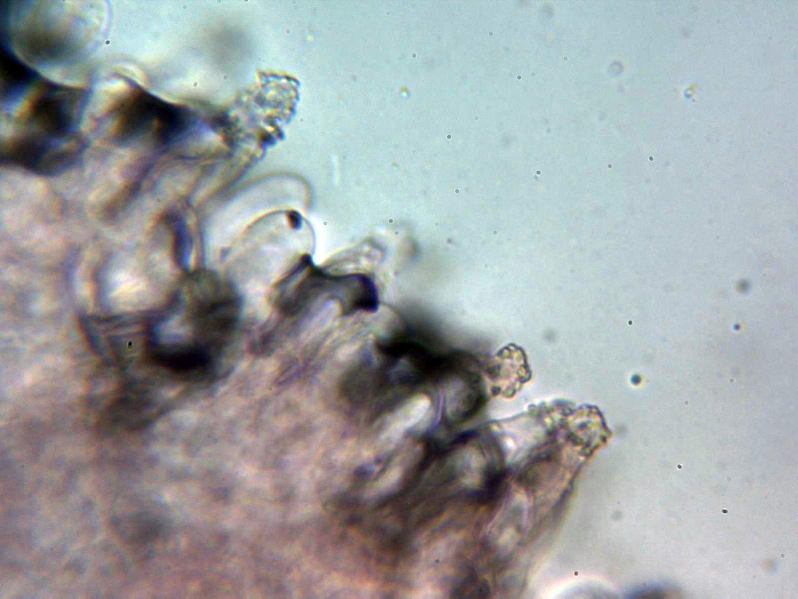 Queilocistidios4_2020-08-12.jpg