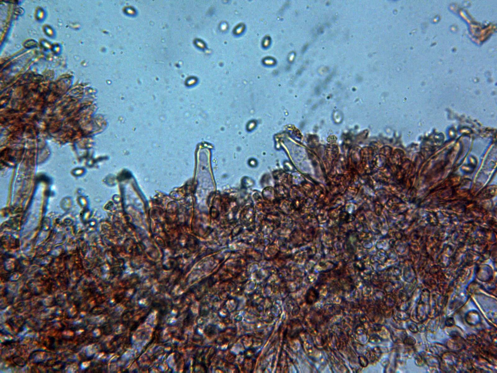 Queilocistidiosx400_2020-09-24-2.jpg