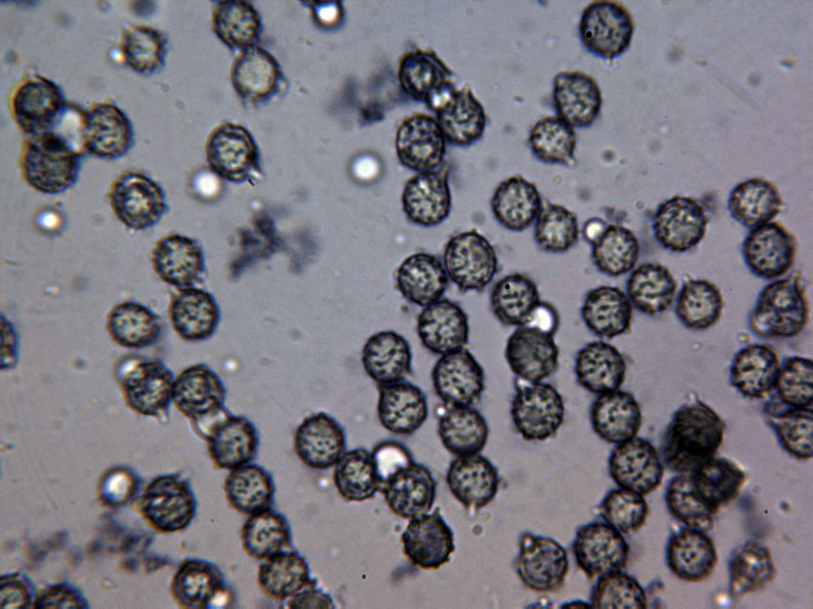 RussulacaeruleaEsporas2.jpg