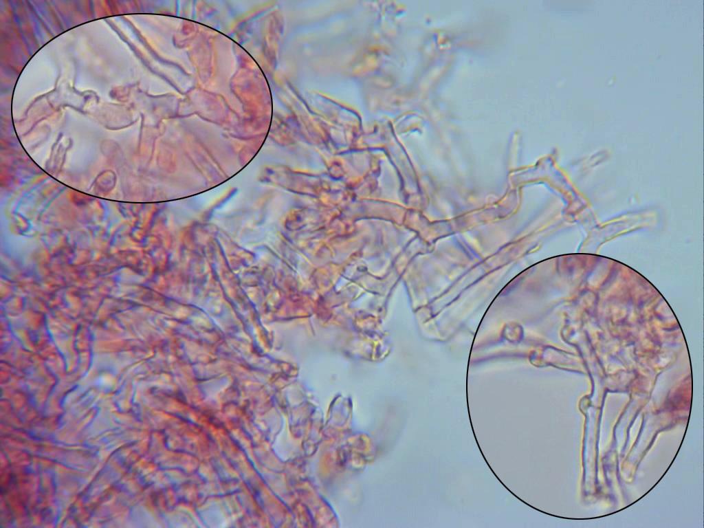SubulicystidiumbrachysporumAbundantesfbulas.jpg