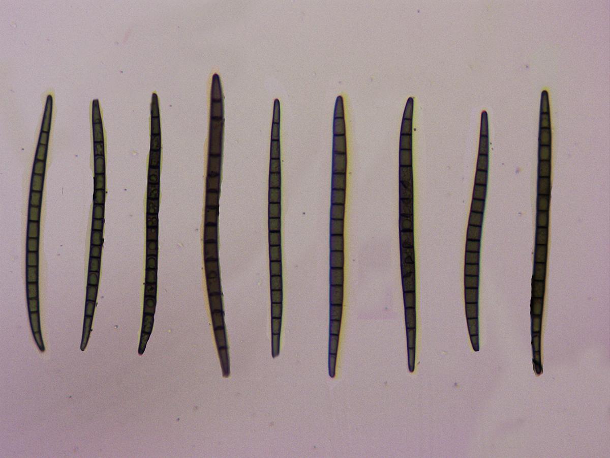 TrichoglossumhirsutumEsporasRojoCongo.jpg