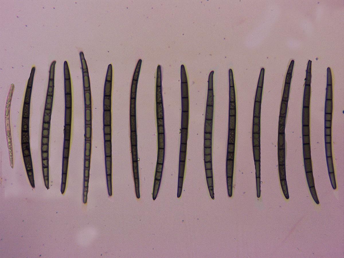 TrichoglossumhirsutumEsporasconmenosseptos.jpg