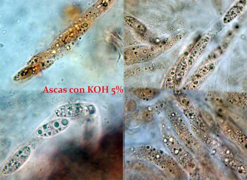 Ascas-con-KOH5.jpg