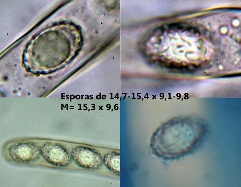Esporas_2017-01-21.jpg
