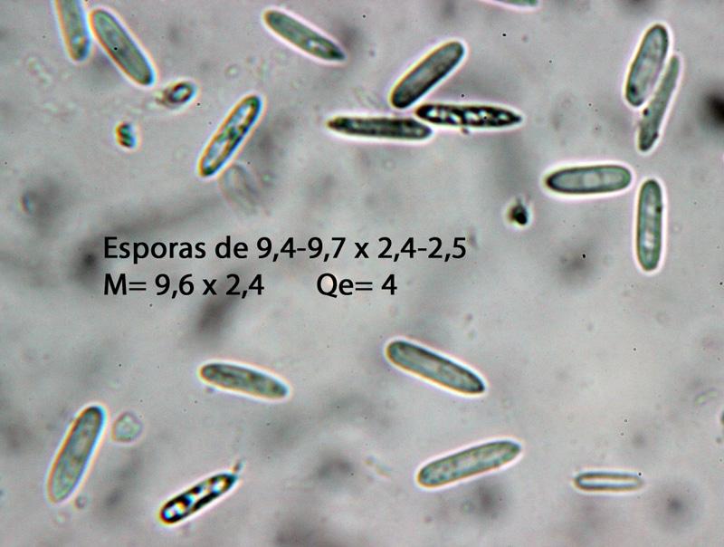 Polycephalomycesramosus-Esporas.jpg