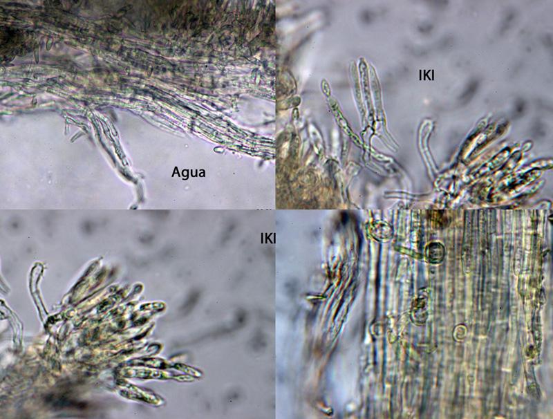 Polycephalomycesramosus-Micro.jpg