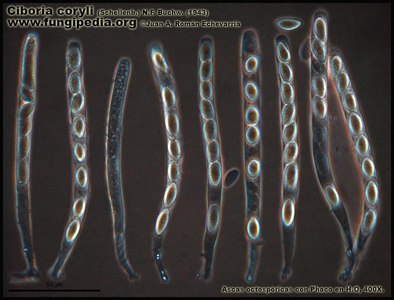 13Ciboria_coryli_Ascas_Microscopy_Microscopia.jpg