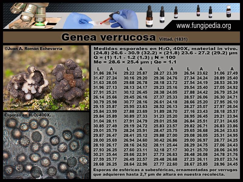 2-1Genea_verrucosa_Microscopia_Microscopy_2020-05-08.jpg