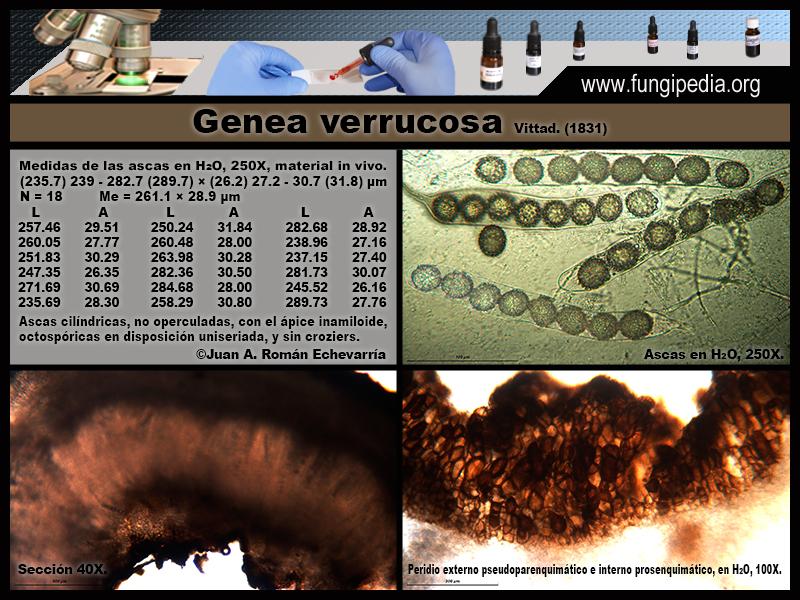 2-2Genea_verrucosa_Microscopia_Microscopy_2020-05-08.jpg