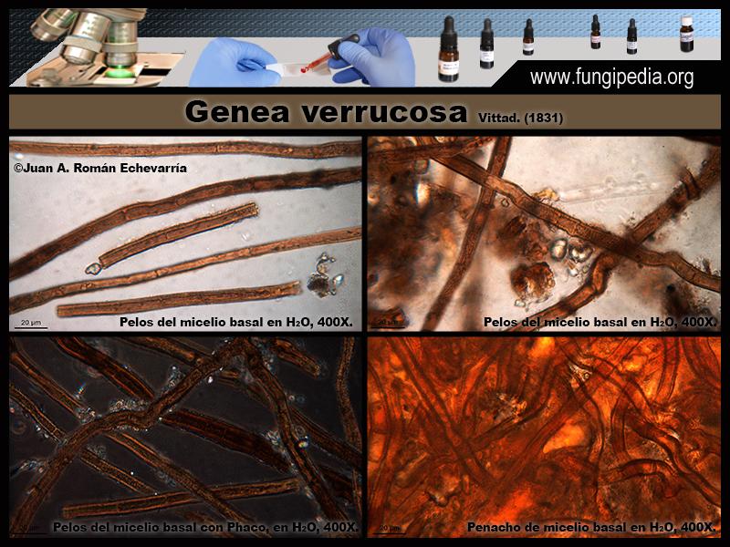 2-8Genea_verrucosa_Microscopia_Microscopy_2020-05-08.jpg