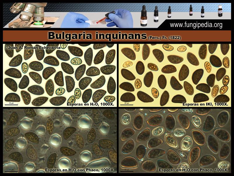4Bulgaria_inquinans_Microscopia_Microscopy_2020-03-25.jpg