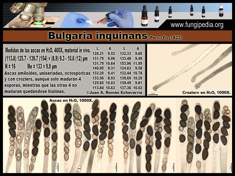 5Bulgaria_inquinans_Microscopia_Microscopy_2020-03-25.jpg