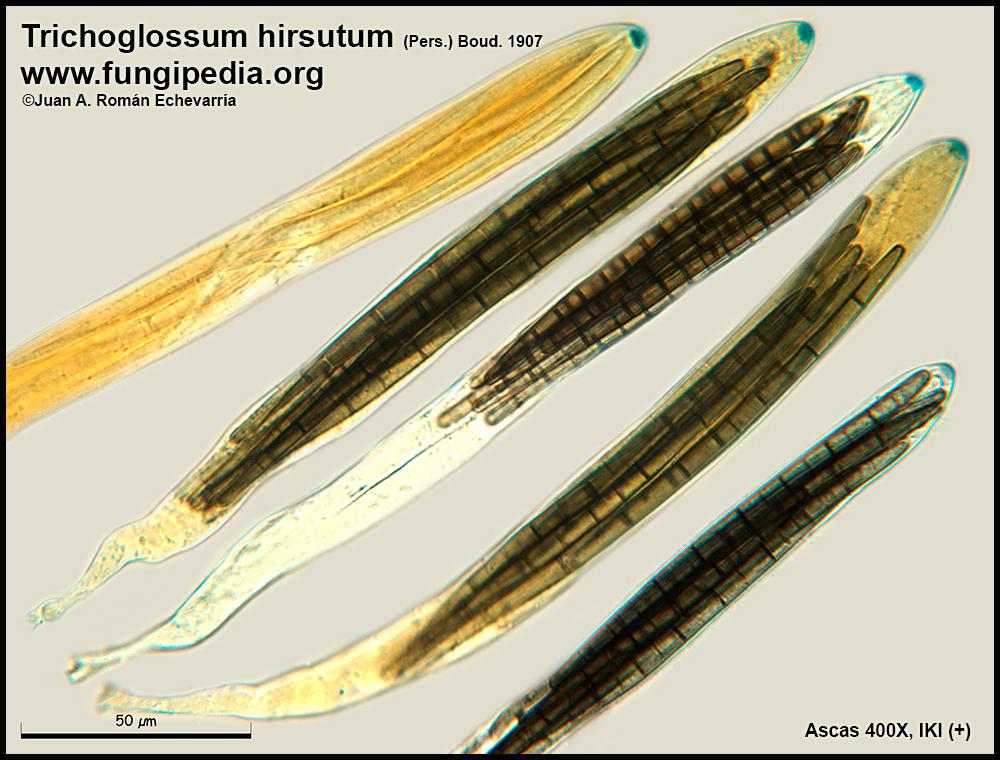 5Trichoglossum_hirsutum_Ascas_Microscopy_2018-03-19.jpg