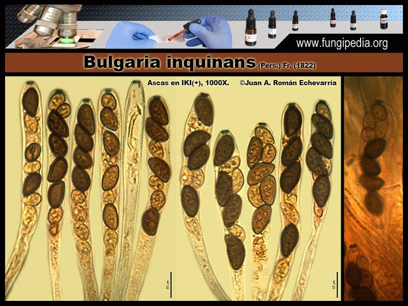 6Bulgaria_inquinans_Microscopia_Microscopy_2020-03-25.jpg